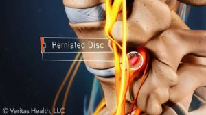 herniated-disc-compressing-nerve